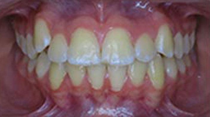 Biobloc Orthotropics - After Treatment 2