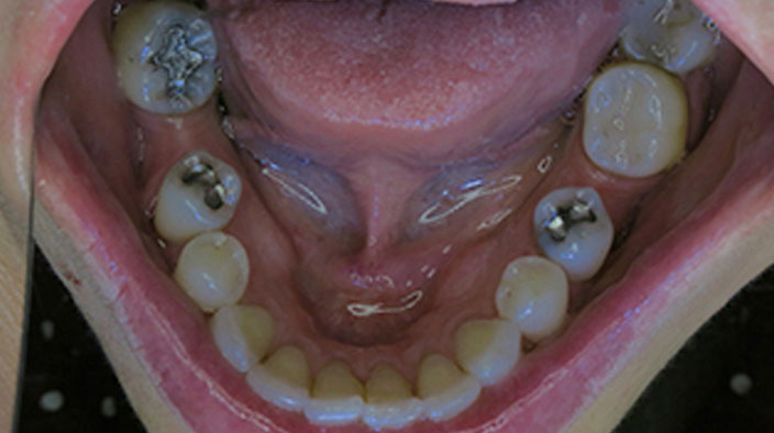 Biological Dentistry - Before Treatment