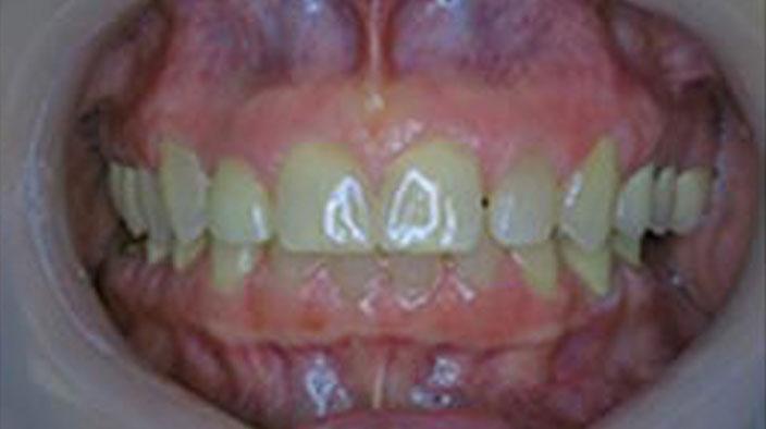 Dental Implants - After Treatment