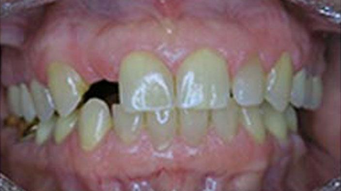 Dental Implants - Before Treatment