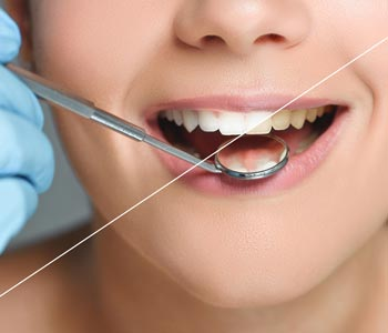 Best Cerec Crowns Treatment provider in Calgary
