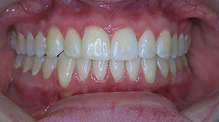 Invisalign - After Treatment 1