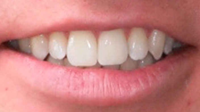 Invisalign - After Treatment 2