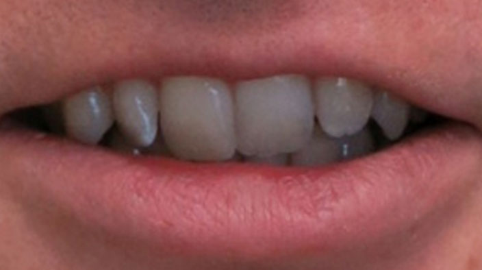 Invisalign - Before Treatment 2